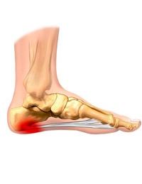 How to Eliminate Heel Pain or Plantar Fasciitis